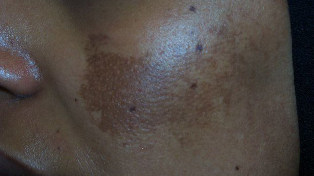 Common Skin Condition That Causes Dark Patches To Appear On The Face And,  Rarely, The Neck, Chest, Or Arms ... Amazing Design