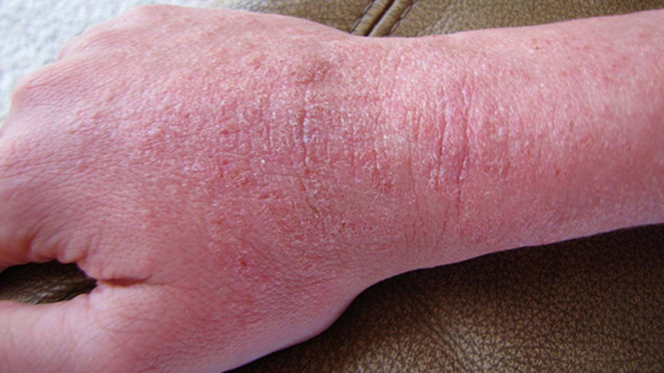 Skin Disorders Pictures Causes Symptoms Treatments