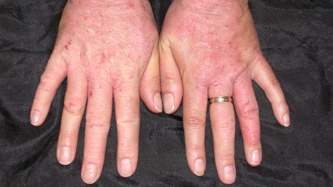 Skin Disorders: Pictures, Causes, Symptoms, Treatments, and Prevention