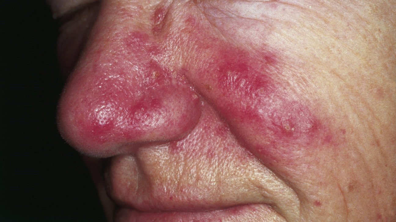 Skin Redness: Causes, Photos, and Treatments