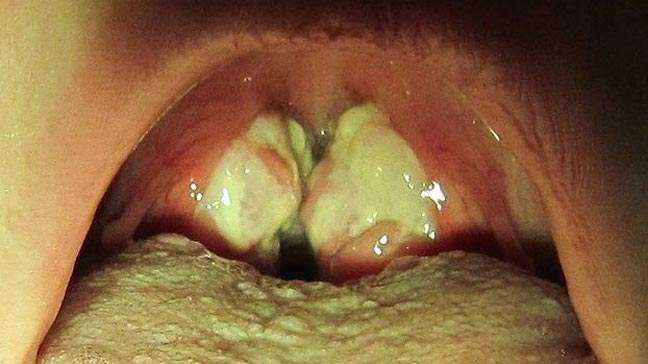 steroids to treat strep throat