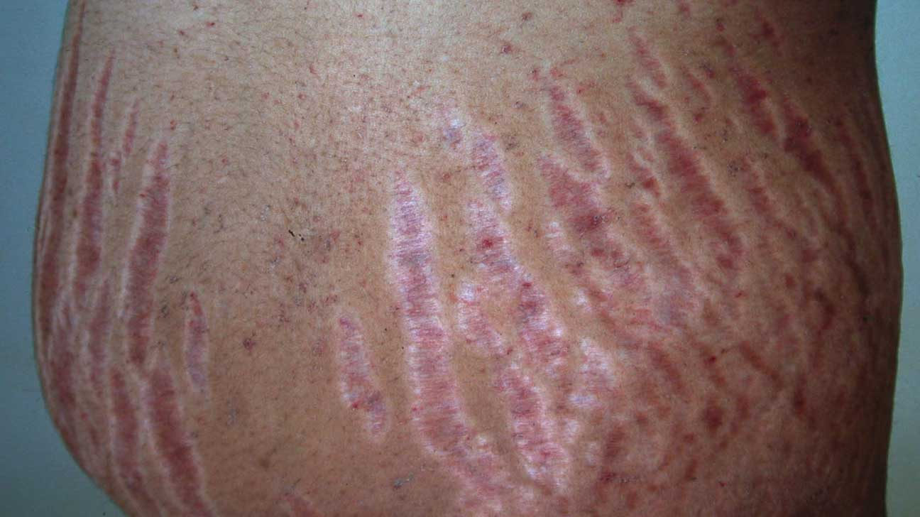 Stretch Marks: Causes, Diagnosis, and Treatments