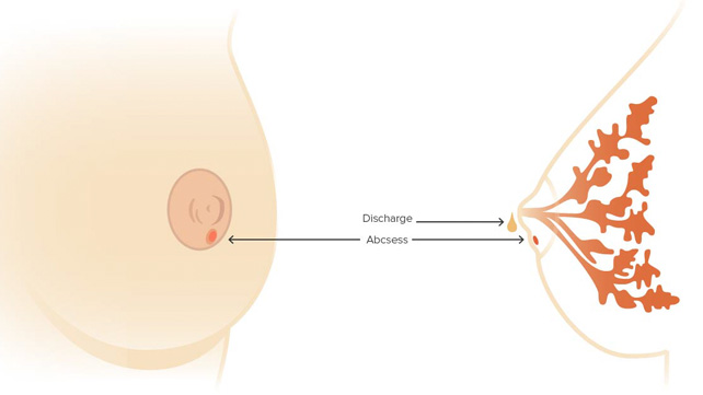 Subareolar Breast Abscess Causes Symptoms And Diagnosis