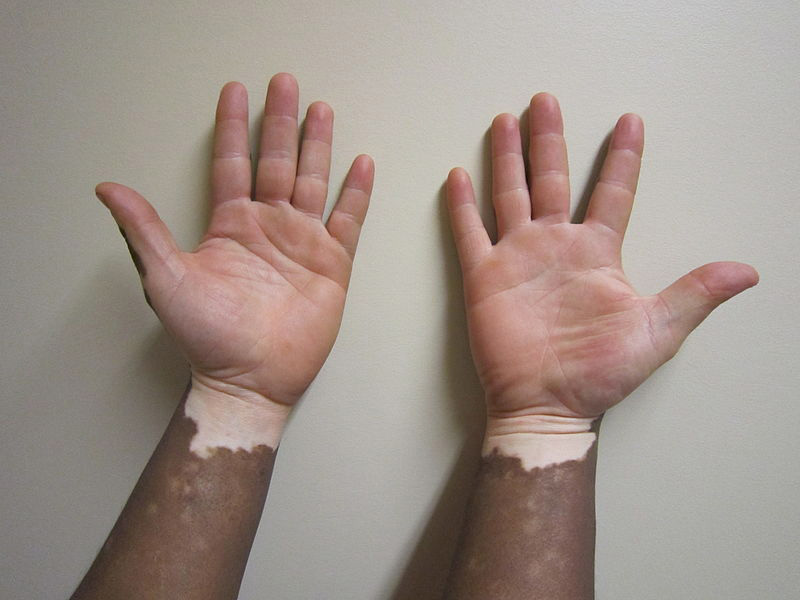 What Does Vitiligo Look Like?
