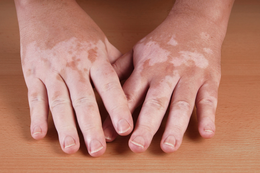 What Does Vitiligo Look Like