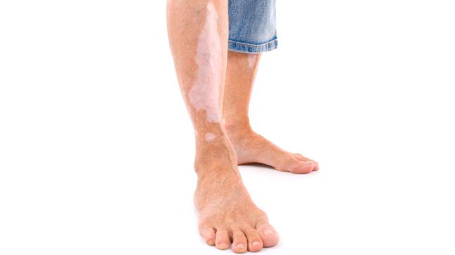 What Does Vitiligo Look Like