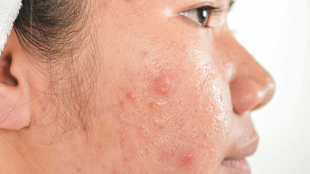 facial-scarring-from-acne