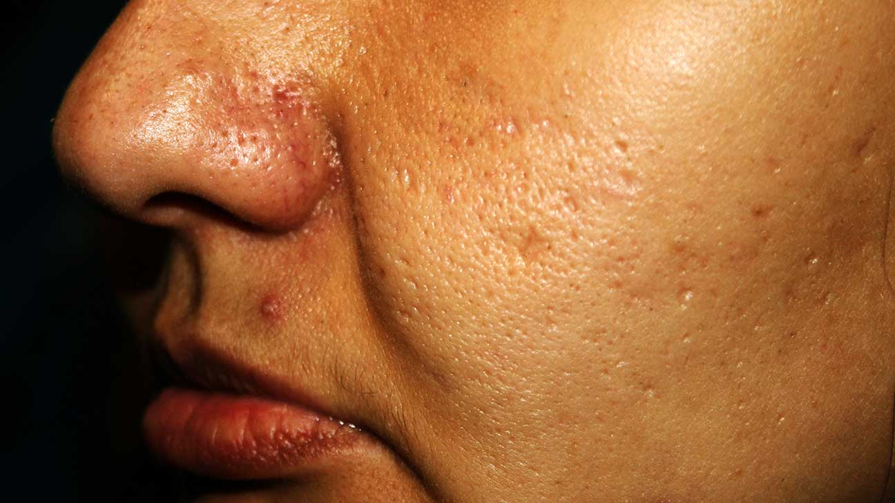 Acne Scars: Treatment, Removal, Best, and More