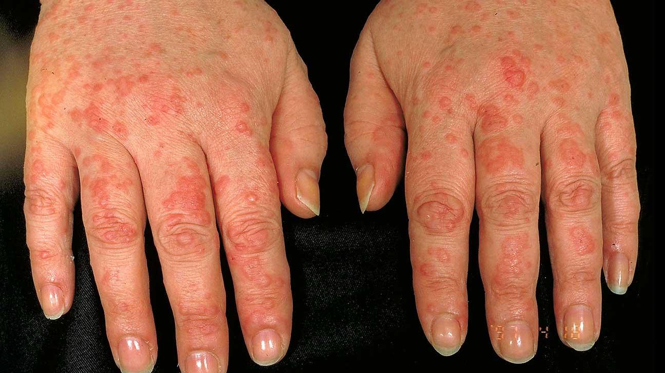 Aquagenic Urticaria: Causes, Symptoms, and Treatment