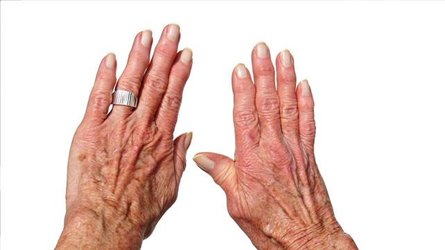 Schwanenhals rheumatoider Arthritis