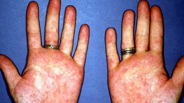 Rheumatoid Arthritis Rashes Pictures Symptoms And Treatments