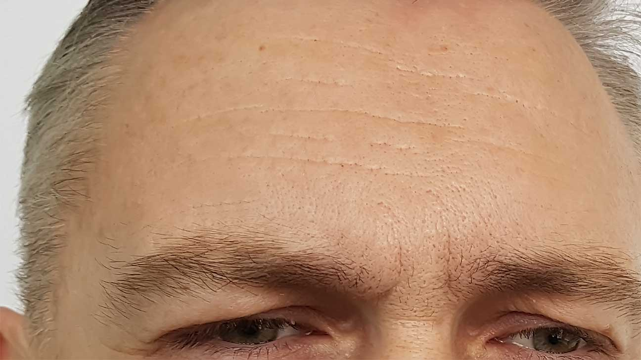 How Many Units of Botox for Forehead?