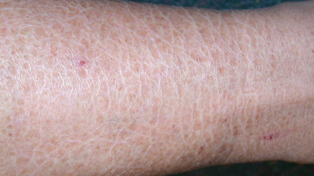 dry itchy patches on skin