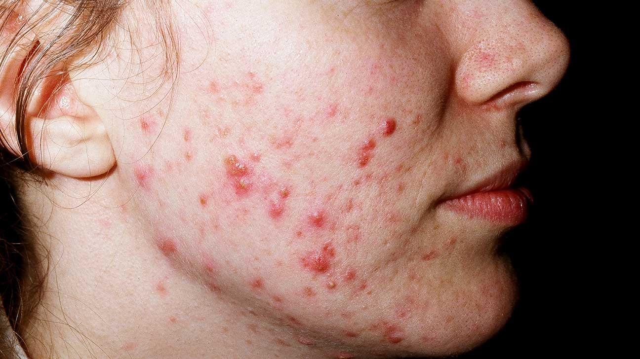 Cold Sore vs. Pimple: Symptoms and Treatment