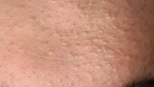 Comedonal Acne Traditional Treatments Natural Remedies And More