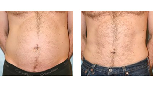 CoolSculpting vs  Liposuction: Cost, Side Effects, Results, Pictures