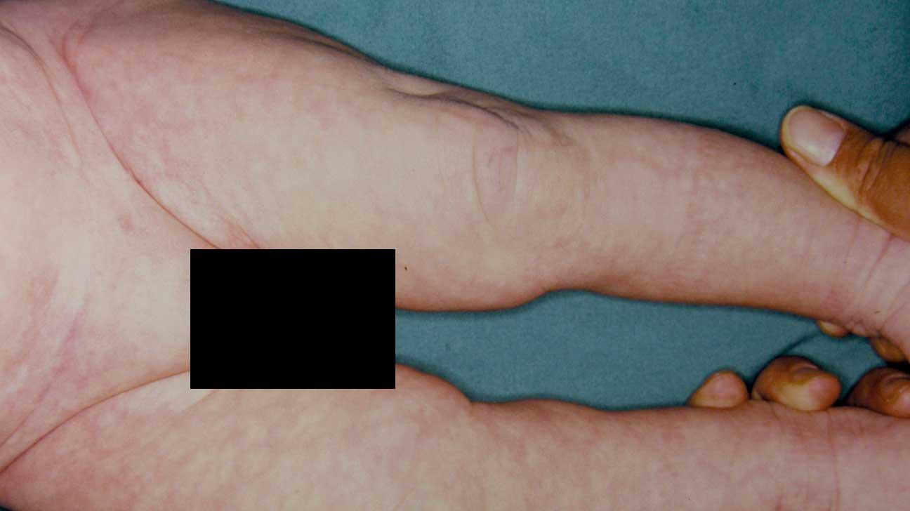 Cutis Marmorata: Symptoms, Pictures, in Adults, and in Newborns