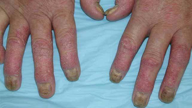 Do I Have Arthritis Early Symptoms