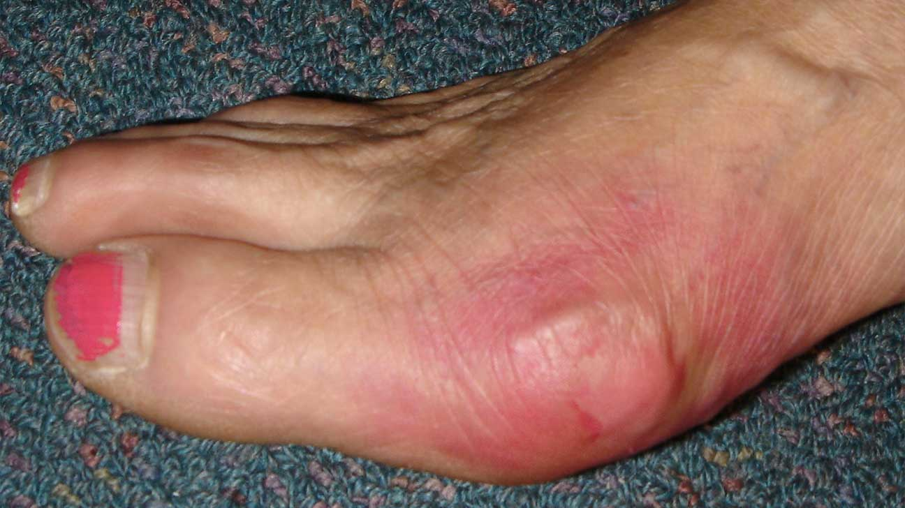 swollen+painful+joints+in+hands+and+feet