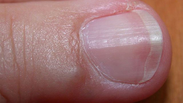 Ridges in Fingernails Symptoms, Causes, and Treatments