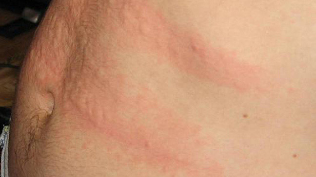 Is Your Rash Caused by Hepatitis C?