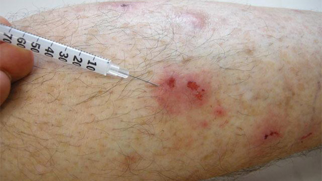 Hypertrophic Scar Treatment Causes Image And More