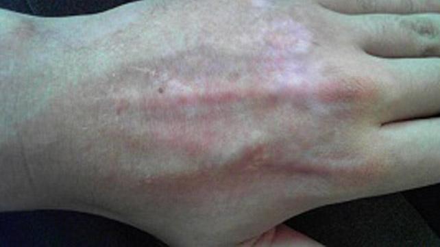 Hypopigmentation Causes Risk Factors Treatments More