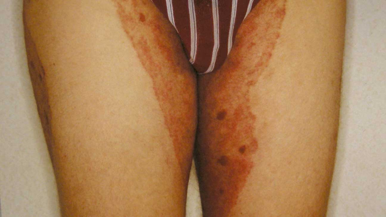 Inverse Psoriasis or Jock Itch: Which Is It?