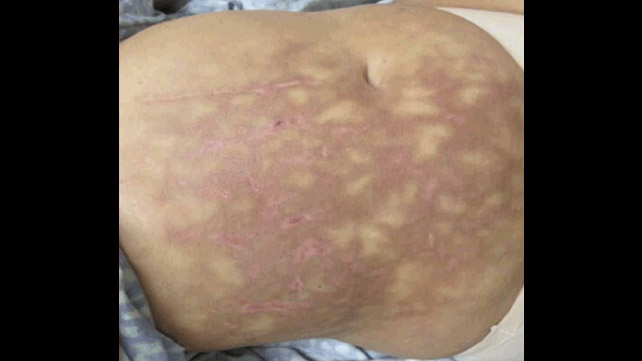 Mottled Skin: Causes, Symptoms, Pictures, Treatment, and More