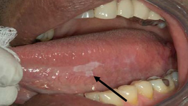 What Does Mouth Cancer Look Like 5 Pictures Of Mouth Cancer