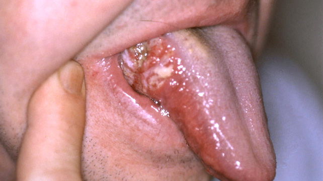 What Does Mouth Cancer Look Like? 5 Pictures of Mouth Cancer