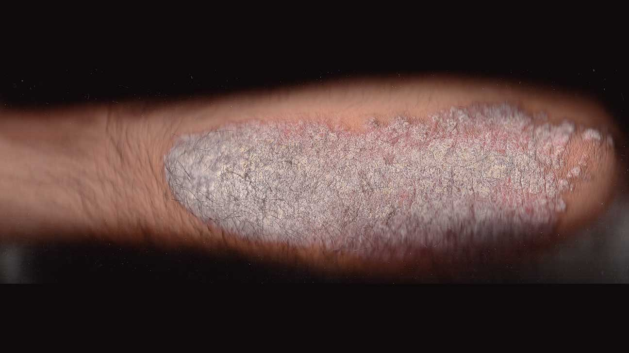 Psoriasis vs  Seborrheic Dermatitis: Which Is It?