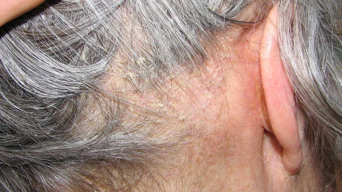 eczema scalp psoriasis