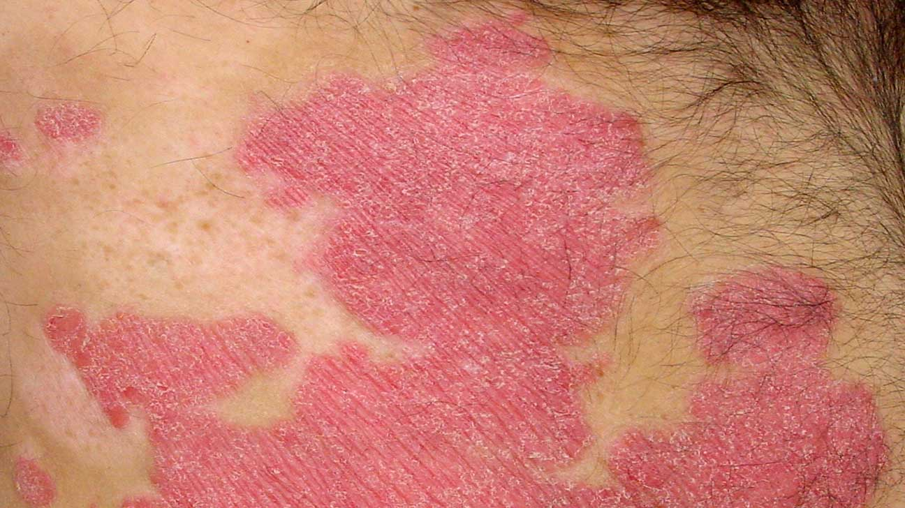 Psoriasis vs  Ringworm: What's the Difference?