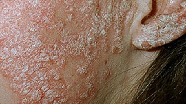 Bőr peeling a kezében psoriasis