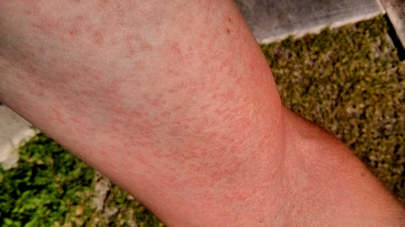 Rashes with Viruses: Symptoms, Causes, Pictures, and Treatment