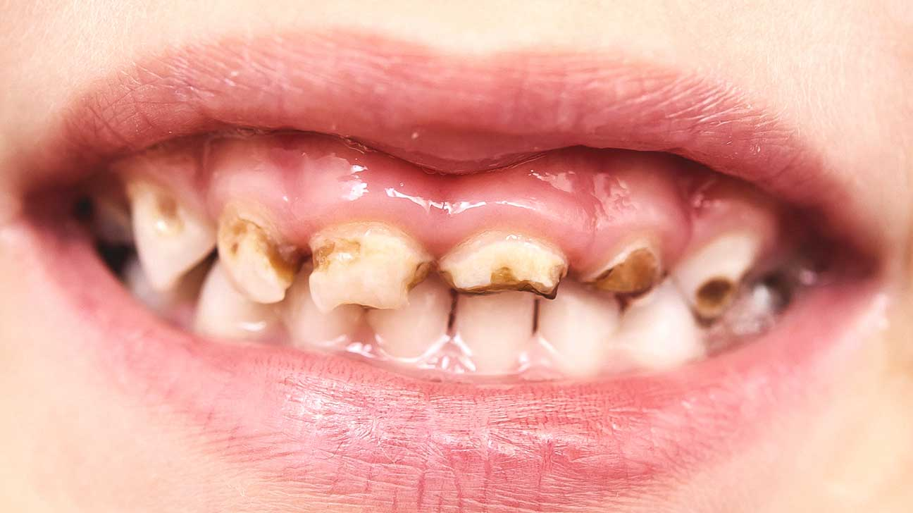 Rotten Teeth: Pictures, Kids, Toddlers, Symptoms, and Treatment