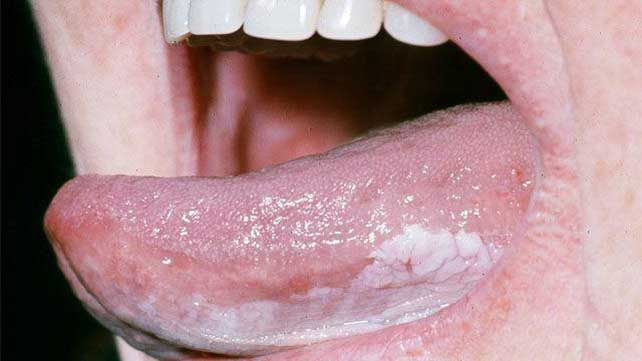 Tongue Cancer Symptoms Pictures Prognosis