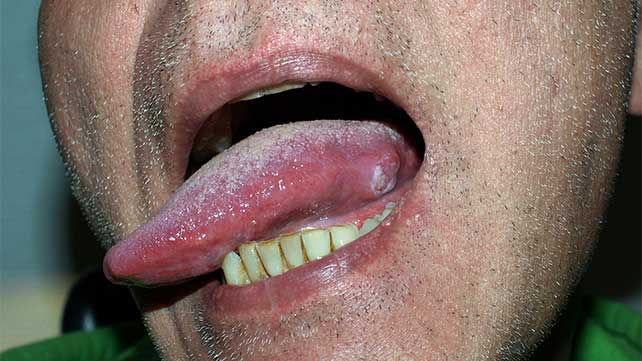 base of tongue cancer caused by hpv)