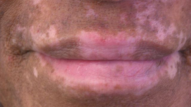What causes little white patches on skin