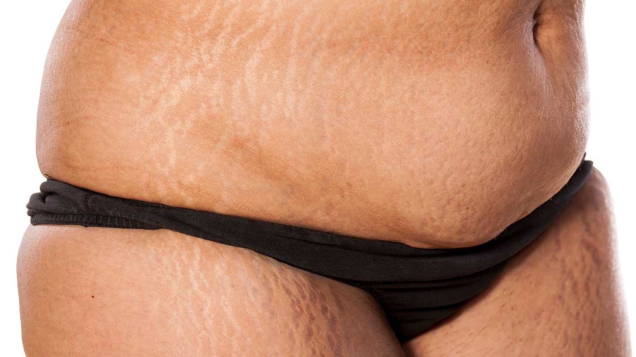 Get rid of weight gain stretch marks