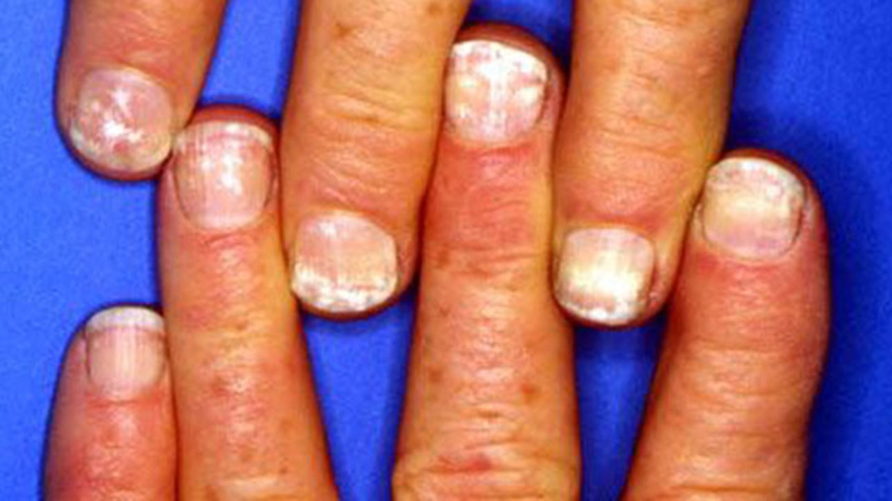 White Spots on the Nails: Causes and More