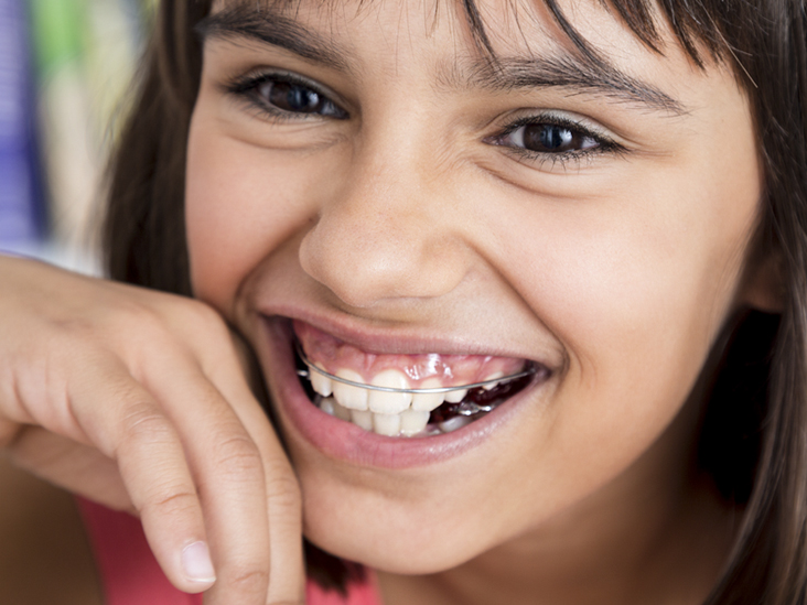 Waterpik vs  Flossing: Know Your Options