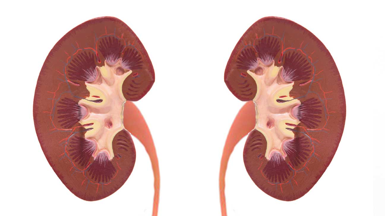 Kidney Transplants Older Donors Can Help
