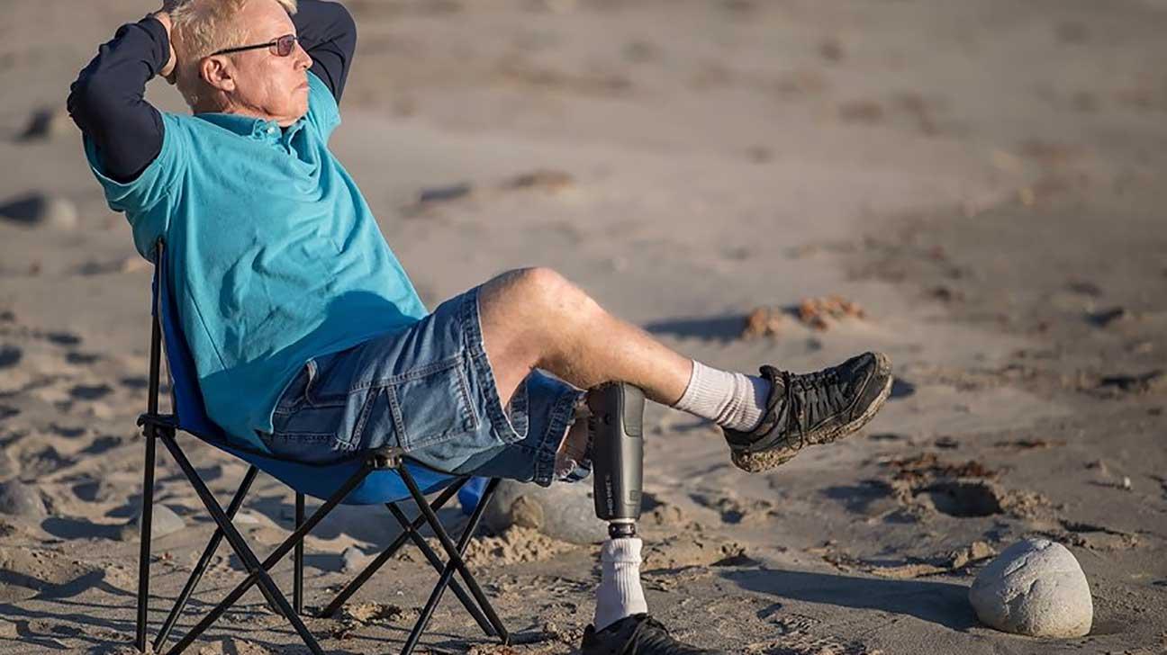 Bone Implants And Prosthetics