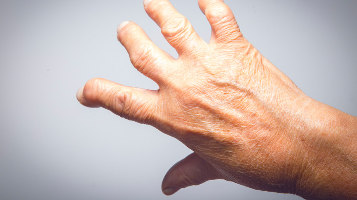 Stem Cell Therapy a Possible Treatment for Rheumatoid Arthritis