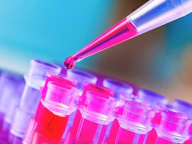Ovarian Cancer Symptoms Similar to Indigestion