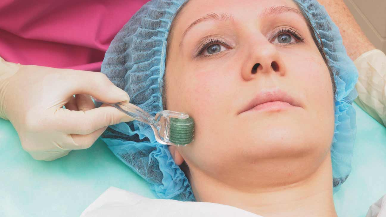 Microneedling for Hair Loss: Is It Effective?