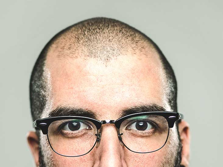 Hair Loss: Why It's Happening to Millennials