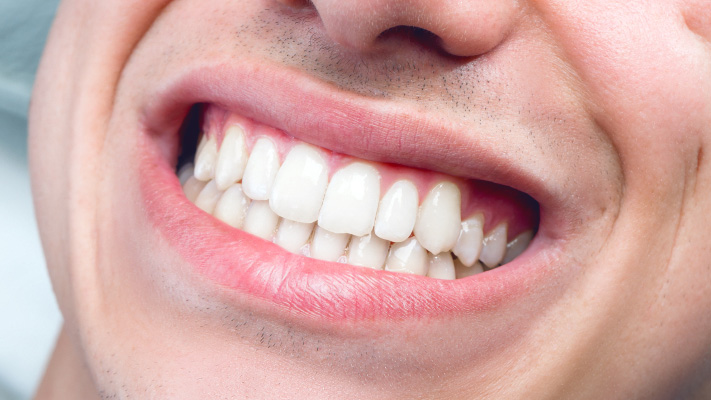 Kết quả hình ảnh cho Cause gum exposed Many When Laugh teeth